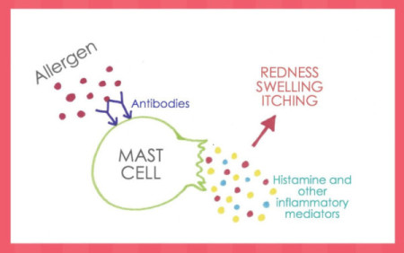 Mast Cell Degranulation, allergy, histamine, antibodies, reaction, anaphylaxis